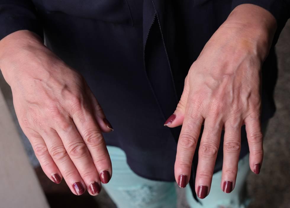 Las manos de Lucía, víctima atendida por Famuvi.