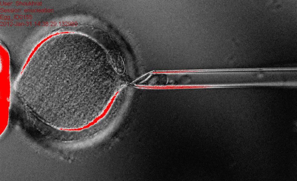 Extracción del núcleo de una célula para preparalo para implantarle otro.
