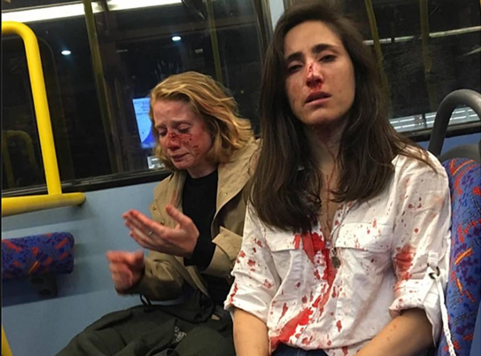 Melania Geymonat y su novia, tras la agresión que sufrieron en un autobús de Londres el 30 de mayo.