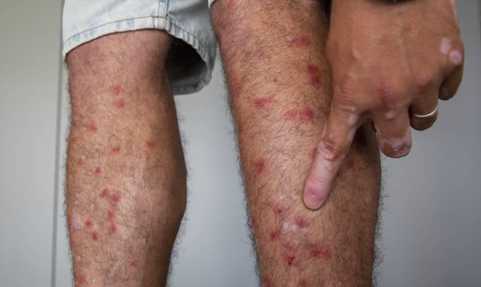 Un afectado por picaduras de mosca negra, en Tarragona.
