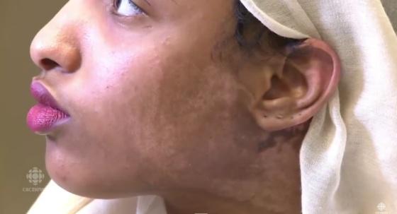 Vídeo Tatuajes Para Esconder Y Curar Cicatrices Verne El País