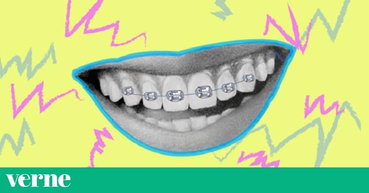 dientes con frenillos antes y despues de adelgazar